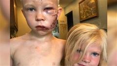 Xông vào chặn đầu chó dữ, cậu bé 6 tuổi quyết tử cứu em gái