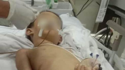 Bé trai 7 tuổi hôn mê sau khi mổ lấy nẹp tay ở bệnh viện Bình Phước đã tử vong