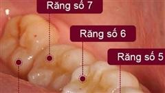 Đừng chủ quan khi nhổ răng khôn
