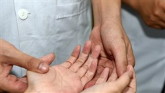 Bệnh tăng tiết mồ hôi tay