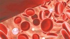 Nồng độ sắt trong máu cao làm giảm tuổi thọ