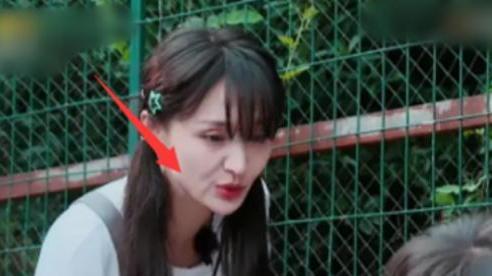 Gương mặt của Trịnh Sảng biến chứng sau phẫu thuật thẩm mỹ