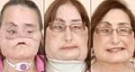 Người đầu tiên phẫu thuật ghép mặt ở Mỹ đã qua đời