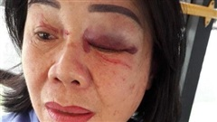 TP HCM: Nữ tiếp viên xe buýt bị khách đấm bầm mắt