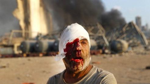 Hình ảnh thảm khốc đẫm máu trong vụ nổ thảm khốc ở Lebanon: Phụ nữ la hét, người lính gục khóc tại chỗ