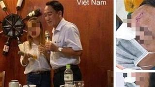 Làm rõ thông tin 'Chủ tịch huyện hát karaoke ôm, đánh nhau bể đầu sứt trán' lan truyền trên mạng xã hội
