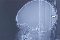Kinh hoàng viên đạn trong đầu đứa trẻ không rõ nguyên nhân