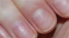 Người nhiều bệnh tật, sức khỏe kém thường có 5 dấu hiệu này trên bàn tay: Càng sớm khắc phục, tuổi thọ của bạn càng kéo dài!