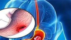 Chuyên gia chỉ rõ 'thủ phạm' chính gây ung thư dạ dày, ai cũng nên biết để tránh