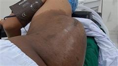 Lúc đầu bằng hạt mít, khối u bất ngờ nặng hơn 4kg trên lưng nam thanh niên