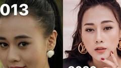 Phương Oanh công khai ảnh trước và sau khi phẫu thuật