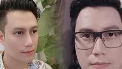 Việt Anh công khai ảnh cận gương mặt sau 1 năm dao kéo