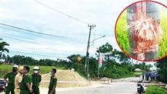 Vụ nổ khi đốt rác ở Quảng Nam: Có mảnh đạn dày 0,7cm cách đống lửa 50m