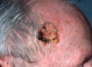 Thuốc lợi tiểu thiazide có thể làm tăng nguy cơ ung thư da