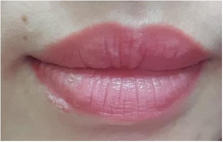 Cảnh báo nhiễm herpes khi xăm môi