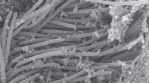 Ảnh vi mô đầy ám ảnh cho thấy coronavirus tàn phá phổi của chúng ta như thế nào
