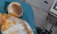 Người vợ bị chồng đốt đã tử vong, để lại 3 con nhỏ