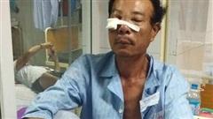 Cãi nhau chuyện cống nước, người đàn ông bị hàng xóm dùng búa sắt đánh vào mặt