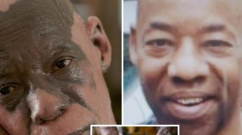 Người đàn ông mắc bệnh lạ khiến làn da loang lổ như đám cháy rừng