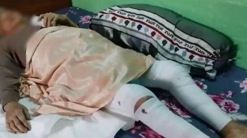 Cụ bà 82 tuổi quê Bình Định vượt qua 'tử thần' một cách ngoạn mục