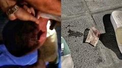 Cảnh sát 141 khống chế đối tượng liều lĩnh nuốt 'hàng trắng' định phi tang