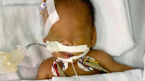 TP.HCM: Bé trai sơ sinh nặng 1,4kg bị bỏ trước cổng chùa đã được bố mẹ đón về
