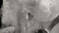 Người phụ nữ ở Hà Nội vỡ túi ngực silicon kèm khối u