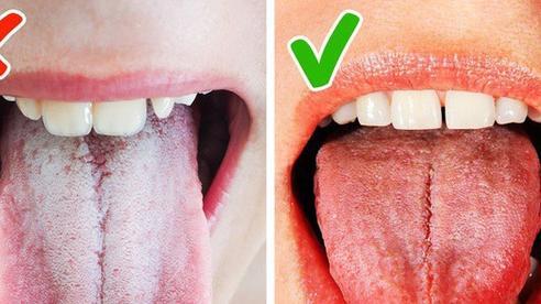 Lưỡi có thể tiết lộ tình trạng sức khỏe của bạn đang gặp vấn đề gì: quan sát 3 đặc điểm sau ở lưỡi là sẽ thấy rõ