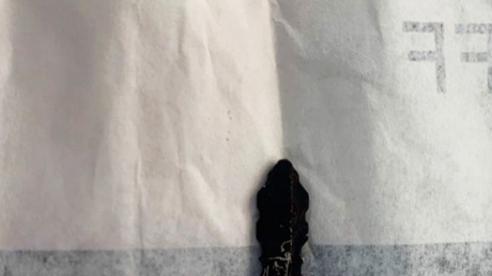 Chìa khóa sắt hoen rỉ nằm trong tai cả năm sau tai nạn