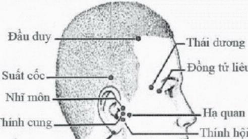 Day bấm huyệt phục hồi di chứng tai biến mạch máu não