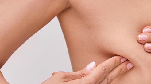 Phụ nữ Việt bị ung thư vú ngày càng sớm, 4 dấu hiệu để nhận biết