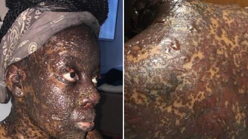 Căn bệnh lạ khiến một phụ nữ nổi mụn nước đen khắp người sau khi uống thuốc kháng sinh và giảm đau