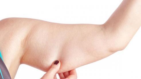 Giảm mỡ bắp tay không khó như bạn nghĩ