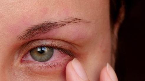 Chuyên gia khuyến cáo nguy cơ mắc bệnh đau mắt sau lũ lụt