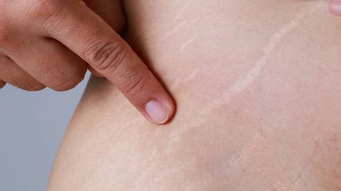 3 cách trị rạn da đơn giản không tốn tiền