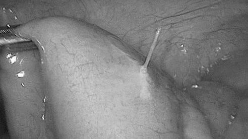 Đau bụng sau ăn phở, người phụ nữ Hà Nội bị thủng ruột