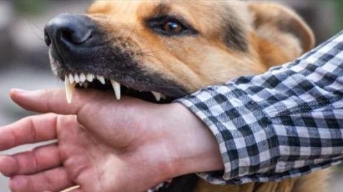 Người đàn ông tử vong sau khi bị chó cắn vì sai lầm nhiều người mắc phải