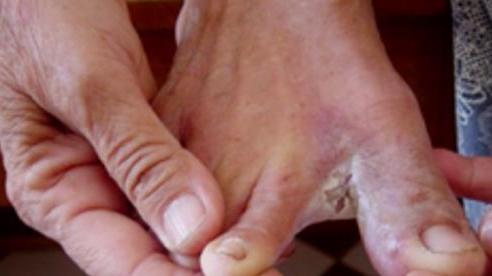 Bệnh da thường gặp sau mùa lũ và khuyến cáo cần biết