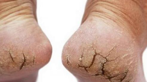 Cách chữa gót chân bị nứt nẻ