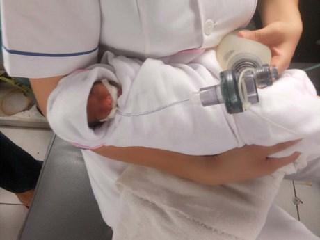 Kỳ tích cứu sống và nuôi dưỡng trẻ sơ sinh bé nhất từ trước đến nay