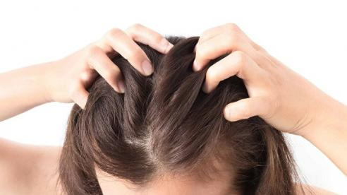 Lý do khiến bạn liên tục bị ngứa da đầu