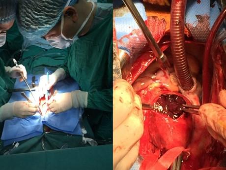 Phẫu thuật cứu sống bệnh nhân phình động mạch, biến chứng nguy kịch