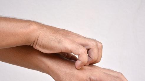 Chứng bệnh khiến người đàn ông liên tục gãi da tới loét nặng