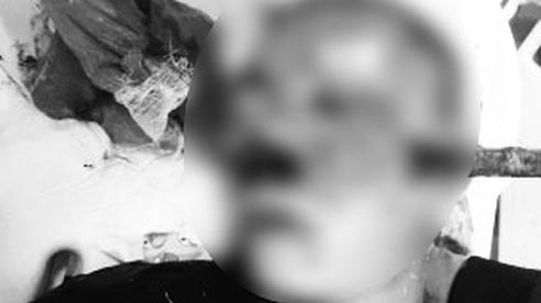 Uống rượu đi xe máy ngã vào bụi cây, nam thanh niên bị cành cây đâm xuyên thấu vùng mũi - mặt