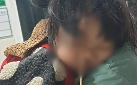 Đang ăn kem thì vấp ngã, bé gái 2 tuổi bị que kem chọc xuyên hốc mắt