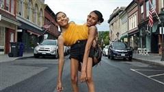 Cuộc sống phi thường của hai cô gái song sinh dính liền 19 tuổi