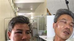 Nhân viên cây xanh bị đánh biến dạng mặt khi chụp ảnh hiện trường