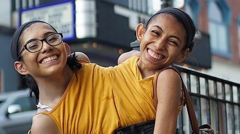Câu chuyện cặp chị em song sinh với cơ thể dính liền từ chối phẫu thuật tách đôi, nguyện cùng nhau sống trong 1 thân xác