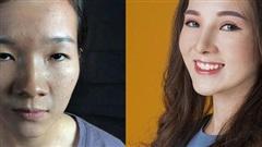 Từ chuyện nữ bác sĩ ở Nghệ An bị người yêu bỏ vì xấu, ngoại hình trong mắt đàn ông quan trọng thế nào?