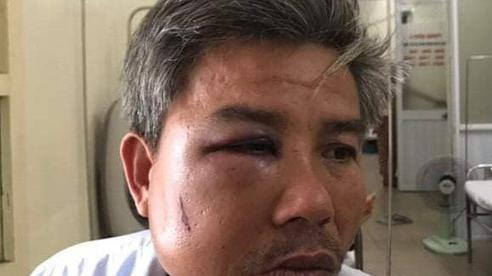 Khởi tố chủ quán cà phê 'Bố Già' vì đánh nhân viên cây xanh nhập viện